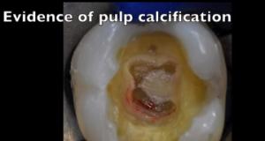 DM_il dentista moderno_pulpoliti_endodonzia
