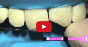DM_il dentista moderno_ricostruzioni estetiche dirette con mascherina in silicone