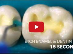 DM_il dentista moderno_ adesivo smalto dentinale_ total etch self etch_adesione in odontoiatria restaurativa