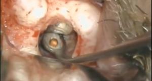 DM_il dentista moderno_cone beam _ endodonzia chirurgica