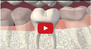 DM_il dentista moderno_frattura verticale elemento dentario
