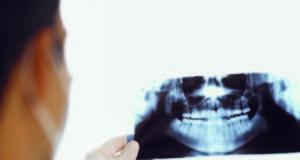 DM_il-dentista-moderno_anatomia-del-parodonto_panoramica_dentista-Composizione dei tessuti parodontali: gengiva e legamento parodontale