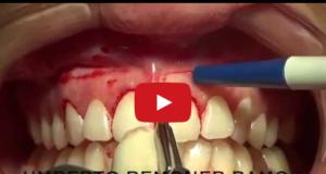 DM_il dentista moderno_gummy smile sorriso gengivale