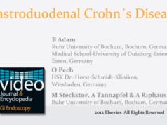 DM_il dentista moderno_morbo di Chron_odontoiatria