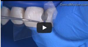 DM_il dentista moderno_odontoiatria restaurativa conservativa_fattore c stress contrazione