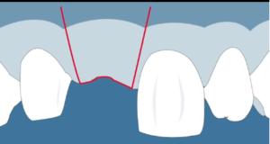 DM_il dentista moderno_parodontologia roll flap