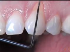 DM_il dentista moderno_parodontologia_eziologia delle recessioni gengivali