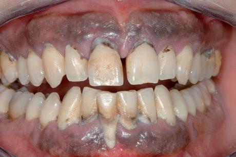 16. Melanosi gengivale in forte fumatore. Si osservino anche le pessime condizioni di igiene orale.