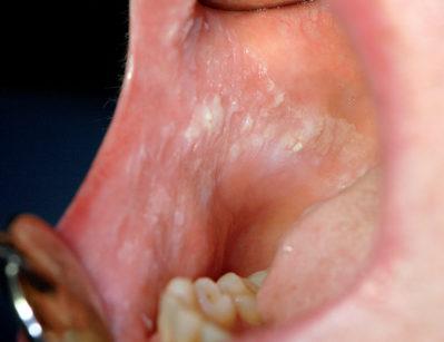 24. Morsicatio buccarum legata ad abitudine viziata del paziente. L'area interessata appare ampia e diffusamente ipercheratosica.