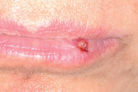 36. Classico aspetto clinico dell'herpes labialis con vescicole frammiste a squamocroste.