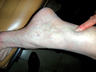 41. Manifestazioni cutanee dell'eritema multiforme: lesioni crostose a coccarda.