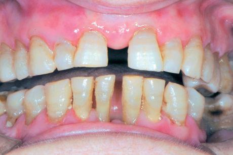 46b. La medesima paziente dopo adeguato trattamento con corticosteroidi.