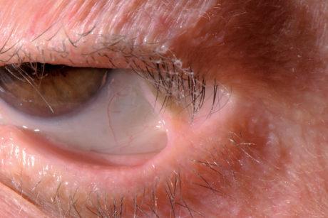 47. Simblefaron causato da pemfigoide delle membrane mucose: evidente la lacinia fibrosa che unisce palpebra inferiore e bulbo oculare.