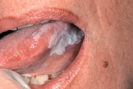61. Leucoplachia ad aspetto verrucoso della mucosa linguale.