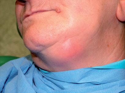 71. Esteso coinvolgimento linfonodale in corso di carcinoma del pavimento orale.