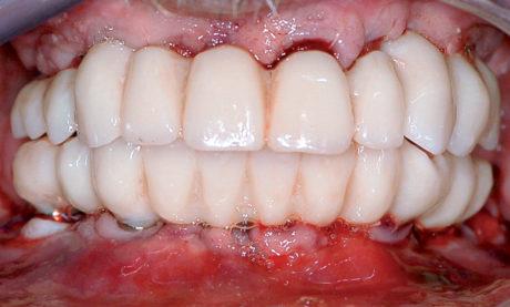 4 1-4. Foto extra e intra orali: prima e dopo