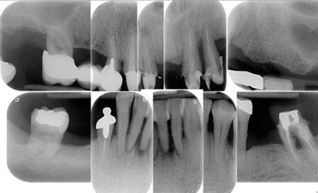 5. Situazione radiologica pre-trattamento