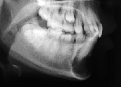 1b. Teleradiografia latero-laterale del cranio eseguita per valutazione ortodontica che evidenzia lesione osteolitica in regione sinfisaria