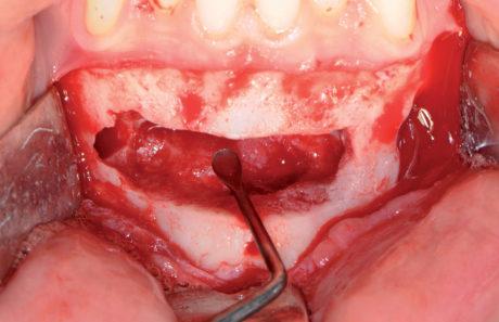 6. Enucelazione e curettage della cavità residua