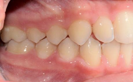 1. Prima classe molare