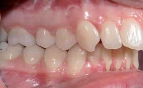 2. Seconda classe molare