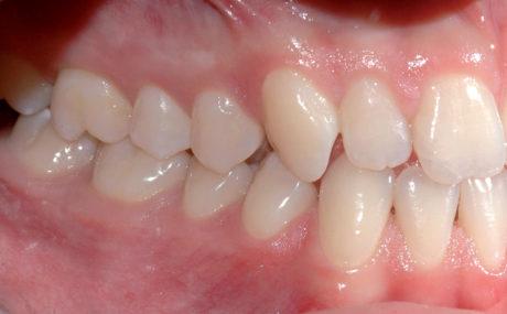 3. Terza classe molare