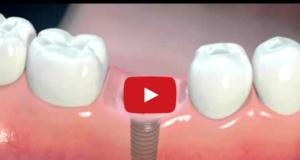 DM_il dentista moderno_implantologia_paziente_informazioni