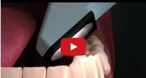 DM_il dentista moderno_presa di impronte in odontoiatria_paziente
