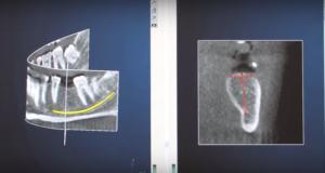 DM_il dentista modenro_implantologia_primo impianto