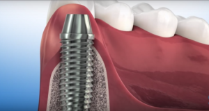 DM_il dentista moderno_compendio alveolo post estrattivo