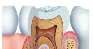DM_il dentista moderno_metalloproteinasi odontoiatria restaurativa