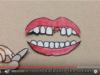 DM_il dentista moderno_prevenzione dei traumi dentari