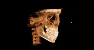 dm_il-dentista-moderno_cbct-in-ortodonzia