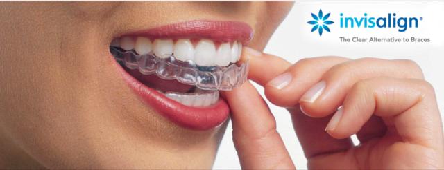 dm_il-dentista-moderno_invisalign_sorriso_allign-technology