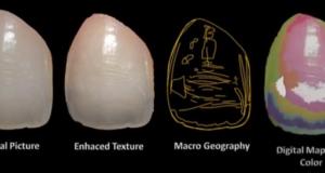 DM_il dentista moderno_scelta del colore_restaurativa conservativa odontoiatria