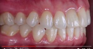 dm_il-dentista-moderno_tecniche-posizioni-fotografiche-in-odontoiatria