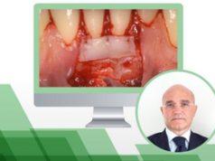 chirurgia_mucogengivale_zucchelli