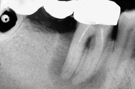 1. Il paziente S.A. si presenta alla nostra osservazione riferendo dolore alla masticazione nell'area inferiore destra della bocca. L'esame radiografico evidenzia che l'elemento 4.6, pilastro di ponte, presenta un'estesa area radiotrasparente periapicale. Il trattamento endodontico esistente è incongruo in quanto non interessa tutto il sistema canalare, inoltre si può vedere una perforazione nell'area della forca.