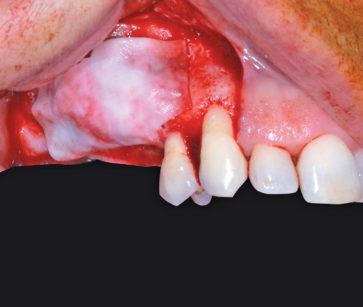 9. Protezione dell'innesto con membrana riassorbibile in collagene