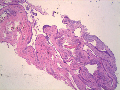 7. Aspetto microscopico della lesione, si nota l'epitelio pavimentoso non stratificato e la presenza di numerosi addensamenti epiteliali