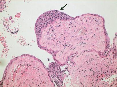 8. Particolare ad alto ingrandimento di un addensamento epiteliale (freccia)