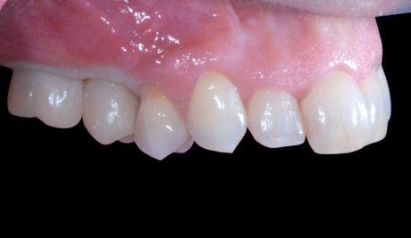 22. Consegna del manufatto protesico provvisorio con evidenza dell'area ischemica temporanea dovuta alla compressione dei tessuti gengivali