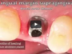 dm_il-dentista-moderno_cementazione-su-impianto-dentale