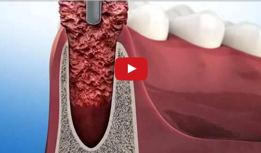 dm_il-dentista-moderno_ridge-preservation