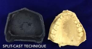 dm_il-dentista-moderno_sviluppare-limpronta-in-gesso-dallimpronta-in-alginato