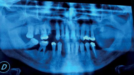2. Parodontopatia in paziente scompensato tipo 2