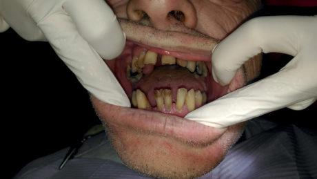 4. Situazione clinica caso precedente altra vista