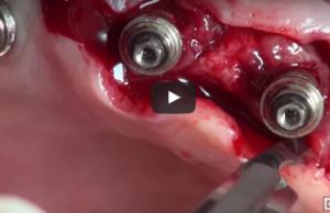 dm_il-dentista-moderno_terapia-chirurgica-delle-perimplantiti