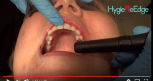 dm_il-dentista-moderno_diagnodent-carie-lesione-cariosa-diagnosi