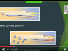 dm_il-dentista-moderno_ipersensibilita-dentinale-meccanismi-teorie